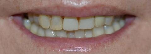 Caso 4: Rejuvenecer una sonrisa.