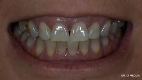 Caso 5: Puentes metal cerámica: Paciente con Tetraciclinas