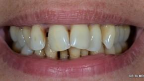 Caso 6: rehabilitación estética de paciente periodontal