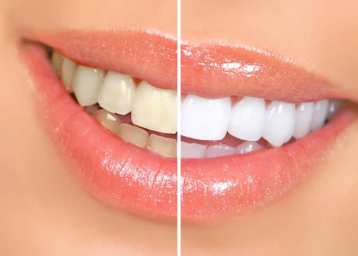 Blanqueamiento Dental en 1 sola sesión